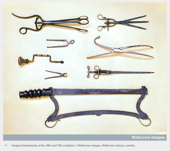 16th_17th_century_surgical_tools.png